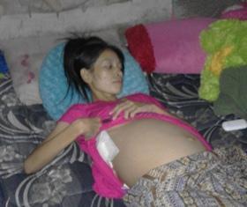 Gadis Penderita Kista Ovarium Butuh Donatur